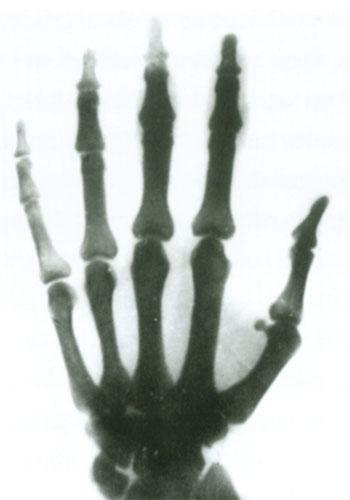 Tesla je u periodu između 1896. i 1897. godine izvodio različite eksperimente s X-zrakama te svoje rezultate izložio u nekoliko zapaženih članaka. Zahvaljujući  vještom fokusiranju zraka i cijevima koje je sam projektirao dobio je tako dobre i jasne snimke, poput ove na slici, na čemu mu je čestitao i sam Röntgen.