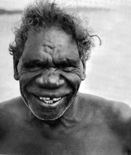 Stariji pripadnik plemena Yirkala, inicijacija vađenja zuba.