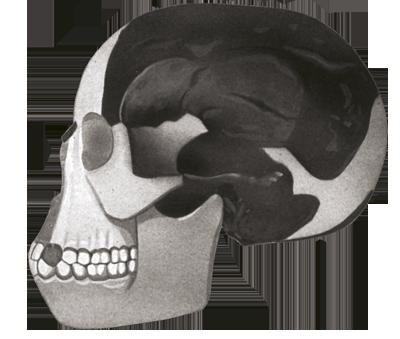 """Čovjek iz Piltdowna (Eoanthropus dawsonii) - paleontološka podvala iz 1912. godine. Proglašen je najstarijim pretkom suvremenog čovjeka, tzv. karikom koja nedostaje, koju karakterizira """"moderna"""" lubanja i """"arhaična"""" vilica. Nakon dugogodišnjeg rasprave o vjerodostojnosti nalaza, konačno je 1953. godine utvrđeno da se radi o falsifikatu."""